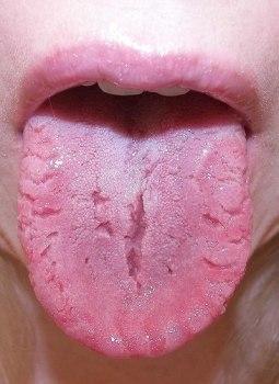 Лечение глоссита в домашних условиях