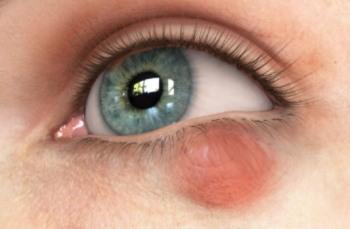 Лечение халязиона народными средствами