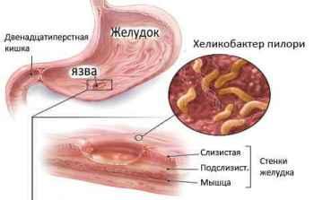 Лечение хеликобактера народными средствами