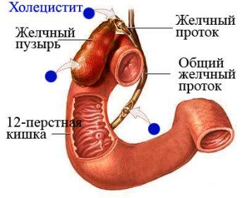 Лечение холецистита народными средствами