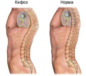 Лечение кифоза