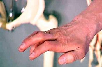 Лечение лучевого нерва руки
