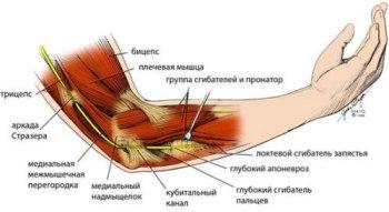 Лечение лучевого нерва руки народными средствами
