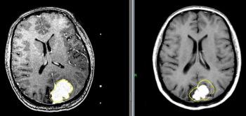 Лечение менингиомы