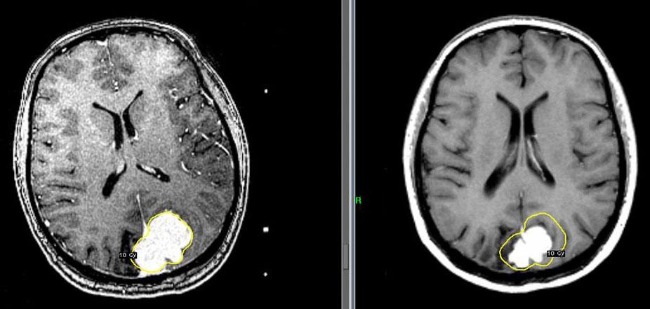 Менингиома головного мозга лечение народными средствами