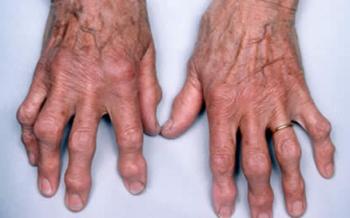 Лечение народными средствами болезней суставов пальцев рук