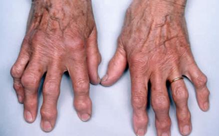 Воспаление суставов народные средства 2013 коленный сустав лекарственнные препараты