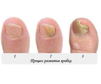 Дрожжеподобные грибки на ногтях