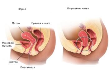 Лечение опущения матки народными средствами