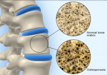 Лечение остеопороза в домашних условиях