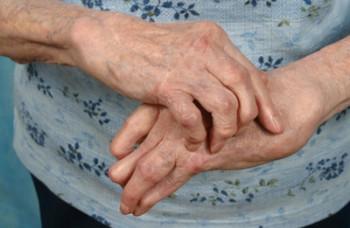 Лечение полиартрита в домашних условиях