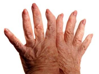 Лечение ревматоидного полиартрита народными средствами