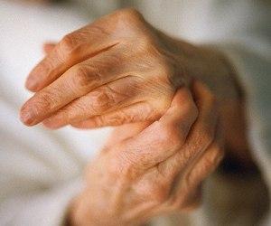 Лечение ризартроза