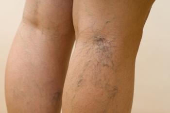 Лечение сосудов ног народными средствами