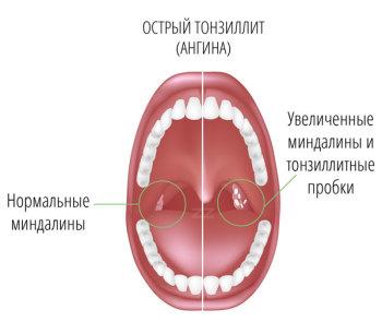 Лечение тонзиллита народными средствами