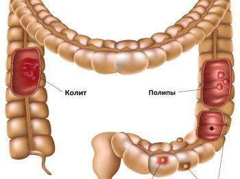 Лечение воспаления кишечника лечение народными средствами