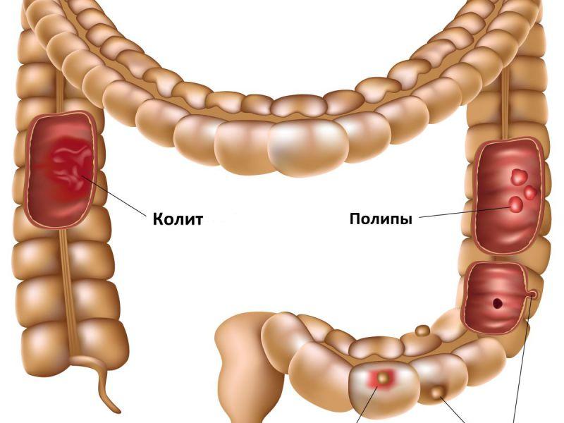 лечение кишечника от паразитов