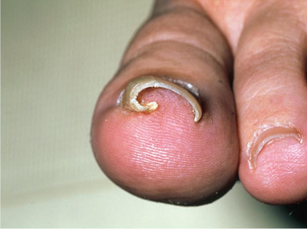 Простое средство против грибка на ногах