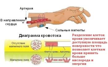 Лечение магнитом в домашних условиях