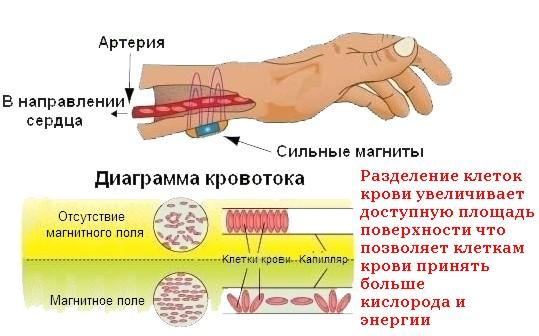 магнитотерапия для лечения суставов