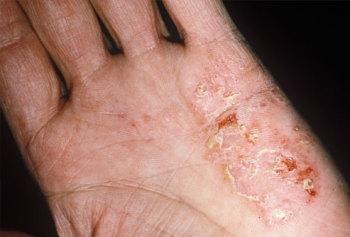 Лечение микробной экземы на руках