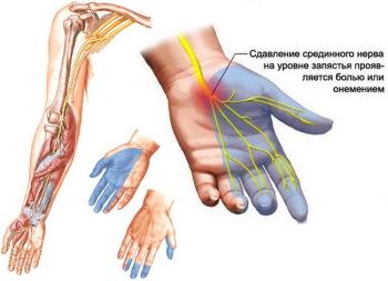 Млеют руки. Причины и народные способы лечения
