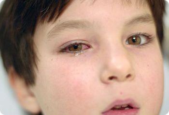 Народные средства при аллергическом конъюнктивите
