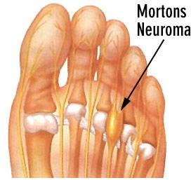 Неврома Мортона лечение народными средствами