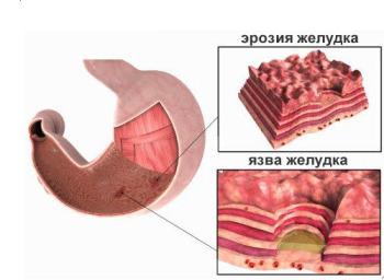 Общие сведения об эрозии желудка