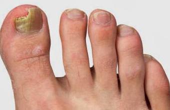 Онихомикоз, более известный как грибок ногтевой пластины кистей и стоп, явление широко распространенное