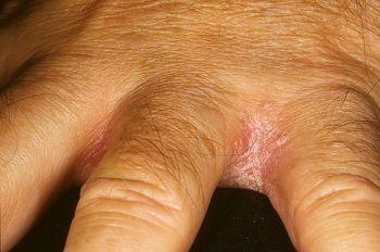 Лечение народными средствами зуда между пальцами рук