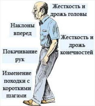 Основные симптомы недуга Паркинсона
