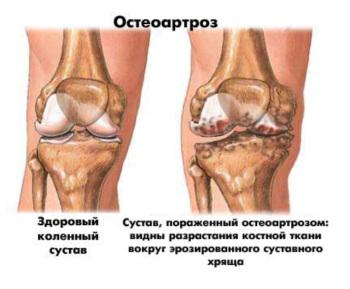 Остеоартроз. Лечение народными средствами