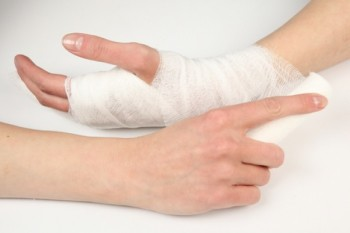 Перелом кисти руки. Лечение и восстановление