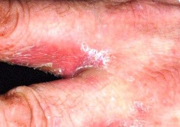 аллергия между пальцами фото