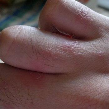 Сохнет кожа между пальцами рук что это 123