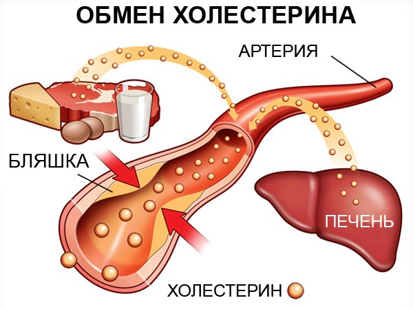 повышенный холестерин что делать отзывы
