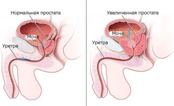Предстательная железа представляет собой вспомогательную часть мужской репродуктивной системы, которая отвечает за увеличение подвижности сперматозоидов
