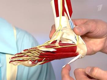 Причиной боли является воспаление сухожилия