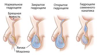 Причины возникновения гидроцеле