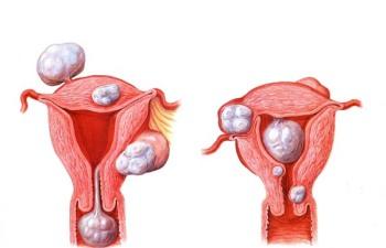 Расположение фибром матки в зависимости от их типа