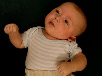 Ребенок со спастической кривошеей