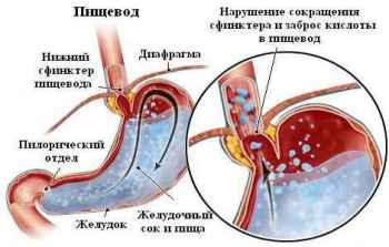 Рефлюкс эзофагит лечение народными средствами