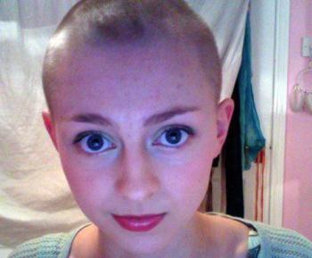 Сами пациенты утверждают, что пусть и недолгое, но облегчение приносит полное сбривание волос с головы, тела, лица