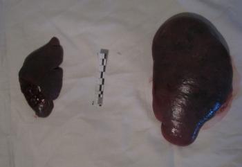 Селезенка наркомана -справа. Увеличена в четыре раза