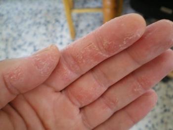 Симптоматика сухой экземы
