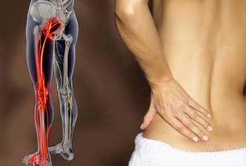 Симптомы заболевания седалищного нерва
