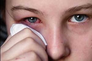 Со временем глаза начинают припухать, появляется отечность, которая сопровождается болезненными ощущениями