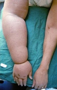 Стадии развития заболевания лимфосистемы