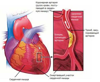 Стенокардия – заболевание сердца, которое подразумевает неправильное кровообращение в средней сердечной мышце – миокарде